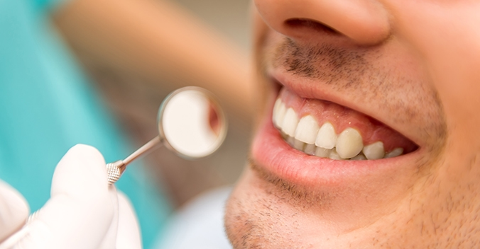 Teeth Cleaning Img1