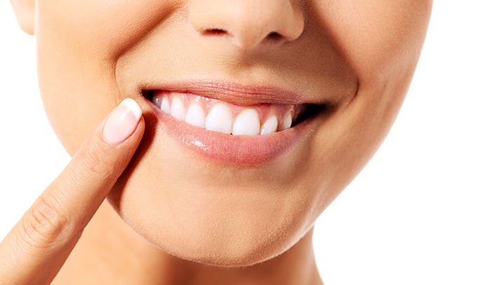 Teeth Removal Img2