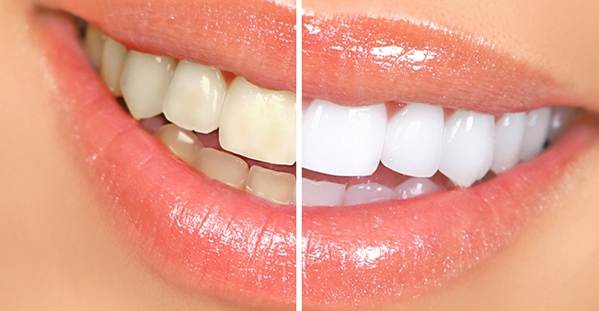 Teeth Whitening Img1