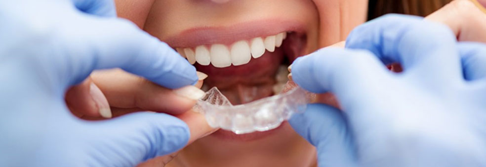 Doctor Or Orthodontist Who Is The Right Invisalign Provider