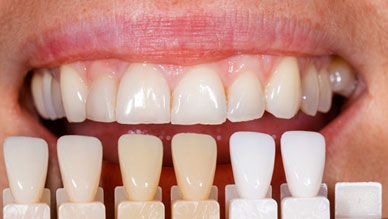 Everything You Need To Know About Dental Veneers 01