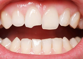 Everything You Need To Know About Dental Veneers 03