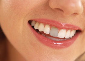Everything You Need To Know About Dental Veneers 04