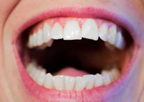Everything You Need To Know About Dental Veneers 05