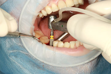 Everything You Need To Know Before Getting Dental Implants 01