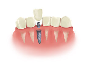Everything You Need To Know Before Getting Dental Implants 02