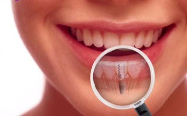 Everything You Need To Know Before Getting Dental Implants 03