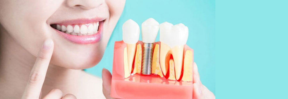 Everything You Need To Know Before Getting Dental Implants