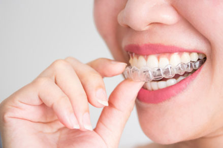 How Is Your Invisalign Treatment Plan Made 03