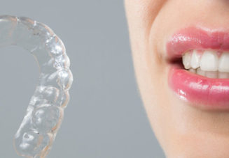 Why Choose Invisalign Over Diy Aligners